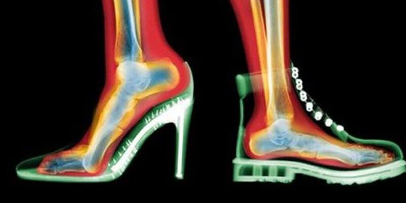 sağlıklı ayakkabı seçimi
